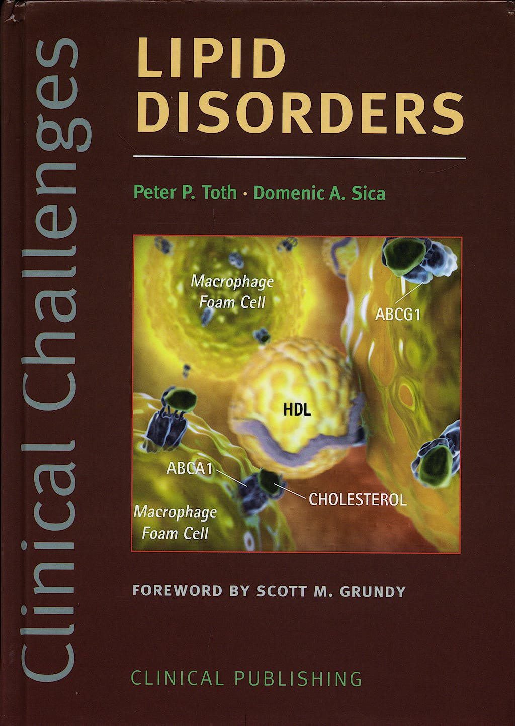 Portada del libro 9781846920295 Clinical Challenges Lipid Disorders