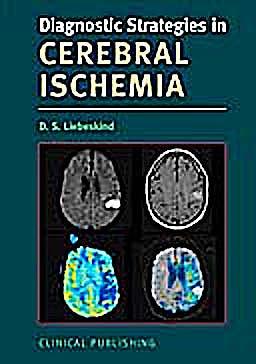 Portada del libro 9781846920851 Diagnostic Strategies in Cerebral Ischemia
