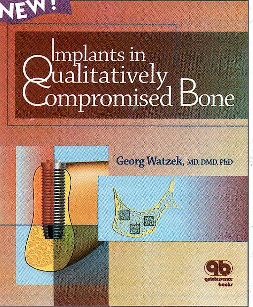 Portada del libro 9781850970507 Implants in Qualitatively Compromised Bone
