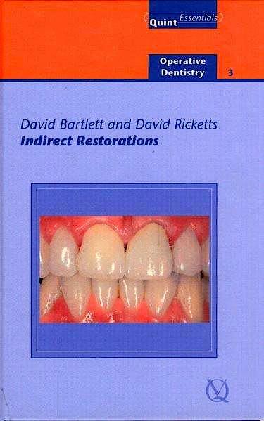 Portada del libro 9781850970781 Indirect Restorations