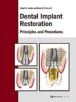 Portada del libro 9781850971016 Dental Implant Restoration. Principles and Procedures