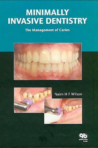 Portada del libro 9781850971054 Minimally Invasive Dentistry. the Management of Caries