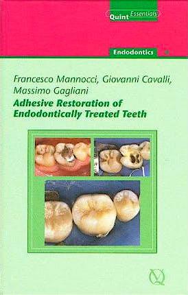 Portada del libro 9781850971351 Adhesive Restoration of Endodontically Treated Teeth