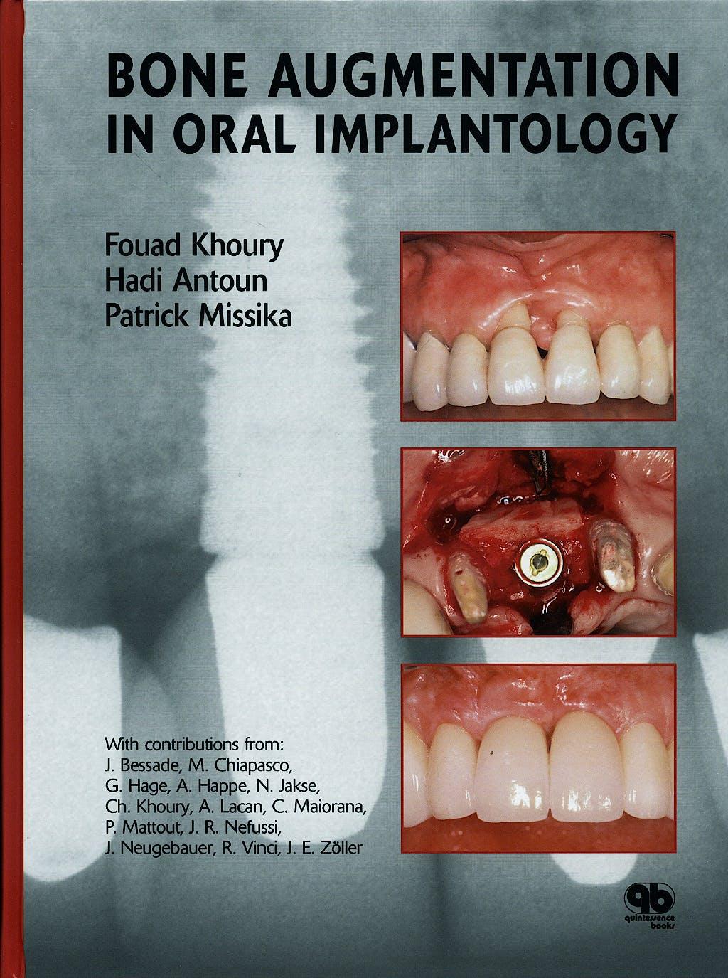 Portada del libro 9781850971597 Bone Augmentation in Oral Implantology