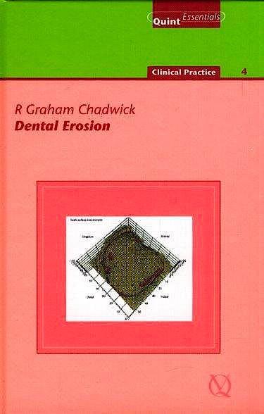 Portada del libro 9781850971658 Dental Erosion