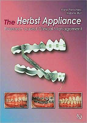 Portada del libro 9781850971696 The Herbst Appliance. Research-Based Clinical Management