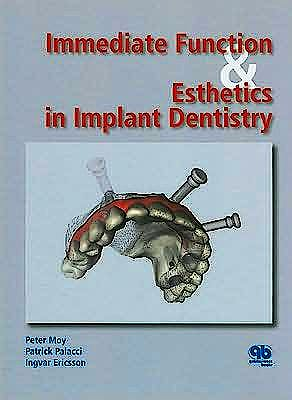 Portada del libro 9781850971733 Immediate Function & Esthetics in Implant Dentistry