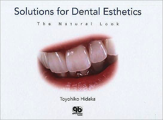 Portada del libro 9781850971764 Solutions for Dental Esthetics. the Natural Look