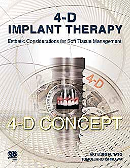 Portada del libro 9781850972013 4-D Implant Therapy. Esthetic Considerations for Soft Tissue Management