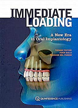 Portada del libro 9781850972020 Immediate Loading. the New Era in Oral Implantology