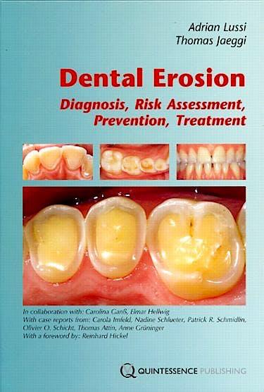 Portada del libro 9781850972181 Dental Erosion. Diagnosis, Risk Assessment, Prevention, Treatment