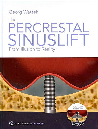 Portada del libro 9781850972228 The Percrestal Sinuslift from Illusion to Reality + Dvd-Rom