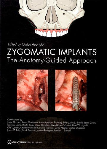 Portada del libro 9781850972259 Zygomatic Implants. The Anatomy Guided Approach