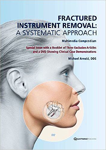 Portada del libro 9781850972730 Fractured Instrument Removal: A Systematic Approach (Booklet + Dvd)
