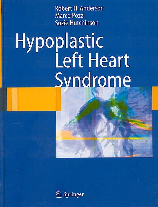 Portada del libro 9781852337650 Hypoplastic Left Heart Syndrome