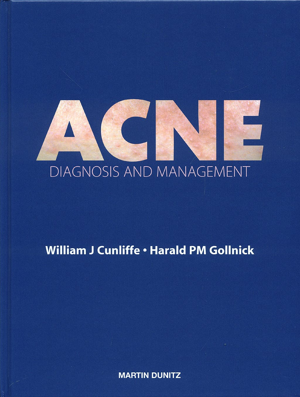 Portada del libro 9781853172069 Acne: Diagnosis and Management