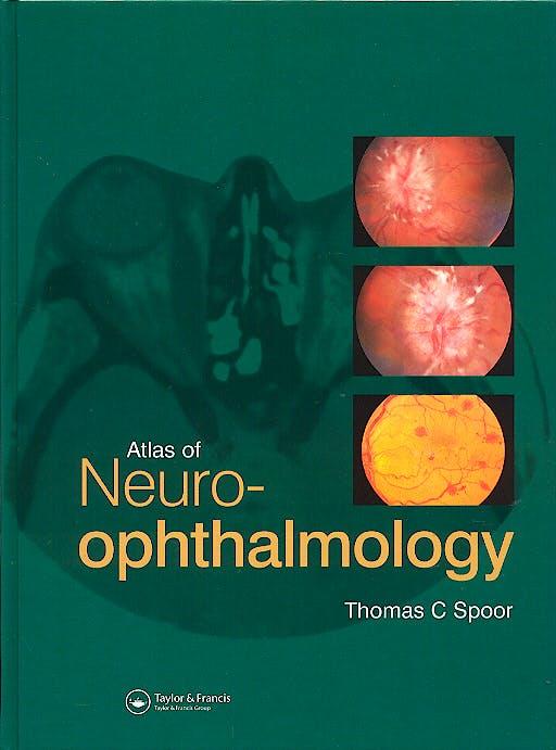 Portada del libro 9781853177736 An Atlas of Neuro-Ophthalmology