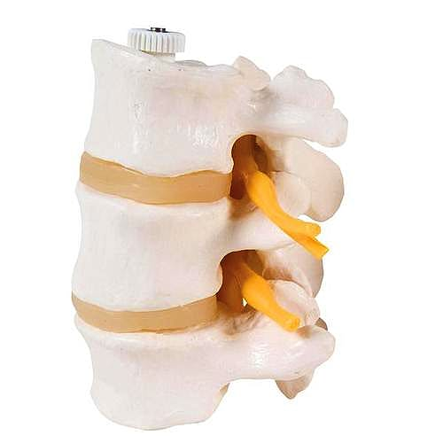 3 Vértebras Lumbares Flexibles