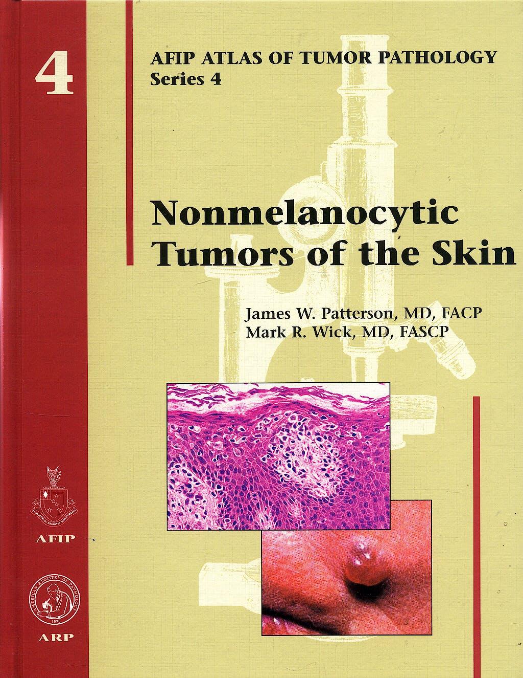 Portada del libro 9781881041986 Nonmelanocytic Tumors of the Skin (AFIP Atlas of Tumor Pathology Series 4, Vol. 4)