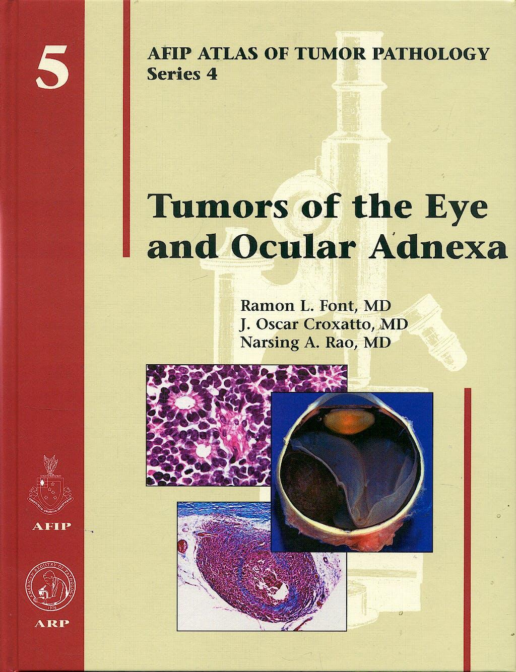Portada del libro 9781881041993 Tumors of the Eye and Ocular Adnexa (AFIP Atlas of Tumor Pathology Series 4, Vol. 5)