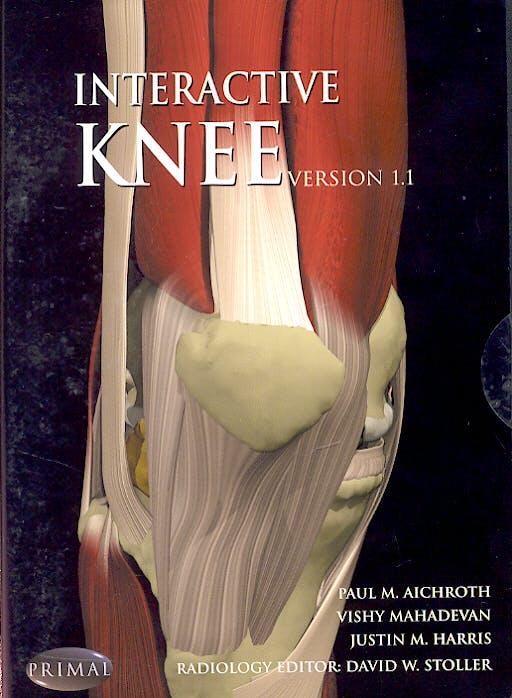Interactive Knee (CD-ROM)