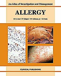 Portada del libro 9781904392248 Allergy: Atlas of Investigation and Management