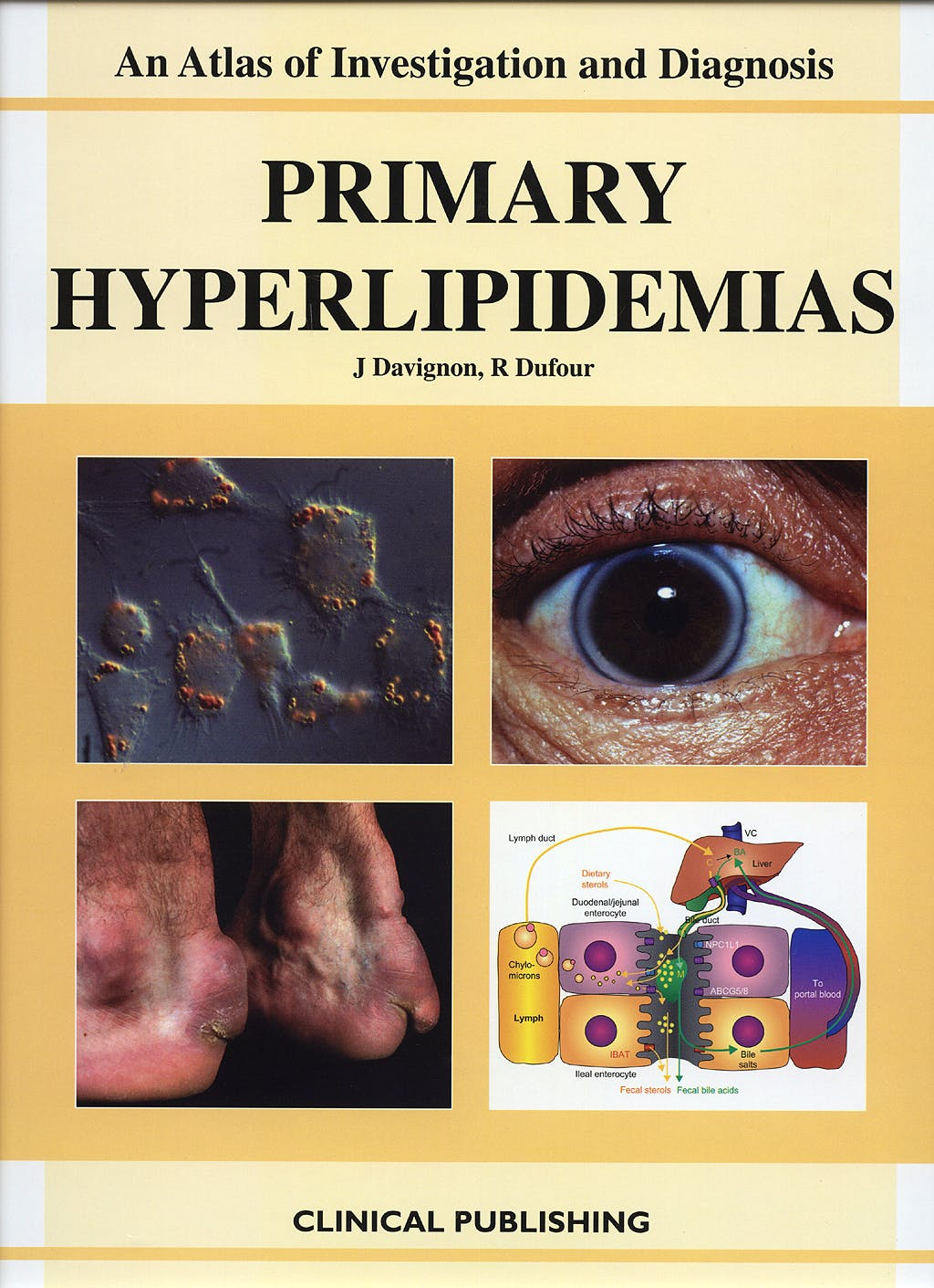 Portada del libro 9781904392446 Primary Hyperlipidemias