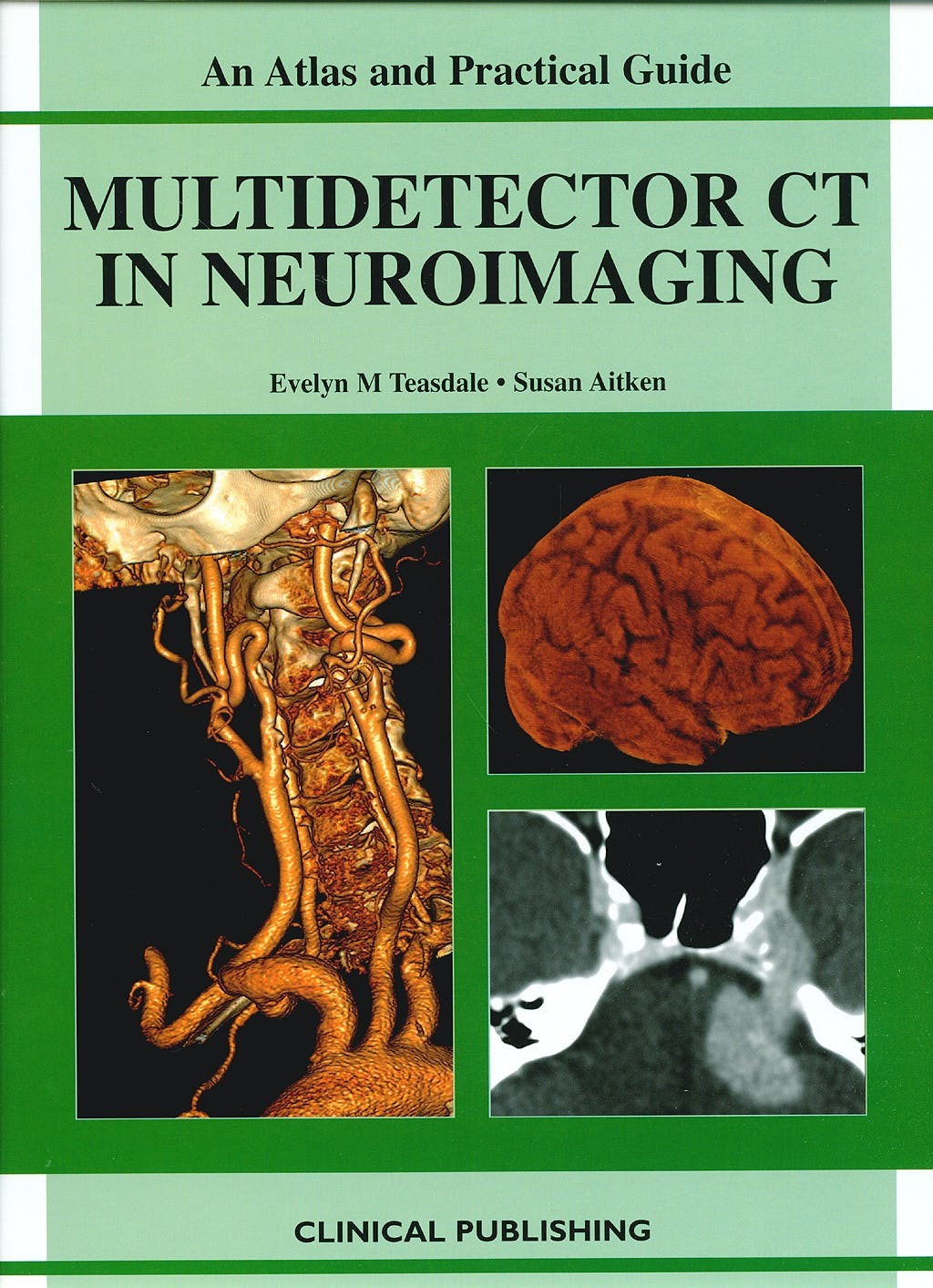Portada del libro 9781904392682 Multidetector Ct in Neuroimaging. an Atlas and Practical Guide