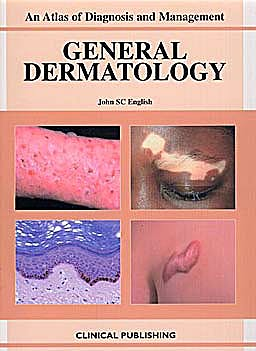 Portada del libro 9781904392767 General Dermatology: Atlas of Diagnosis and Management