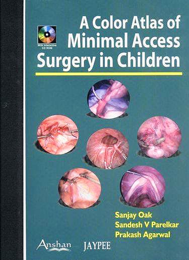 Portada del libro 9781904798187 A Color Atlas of Minimal Access Surgery in Children + Cd-Rom