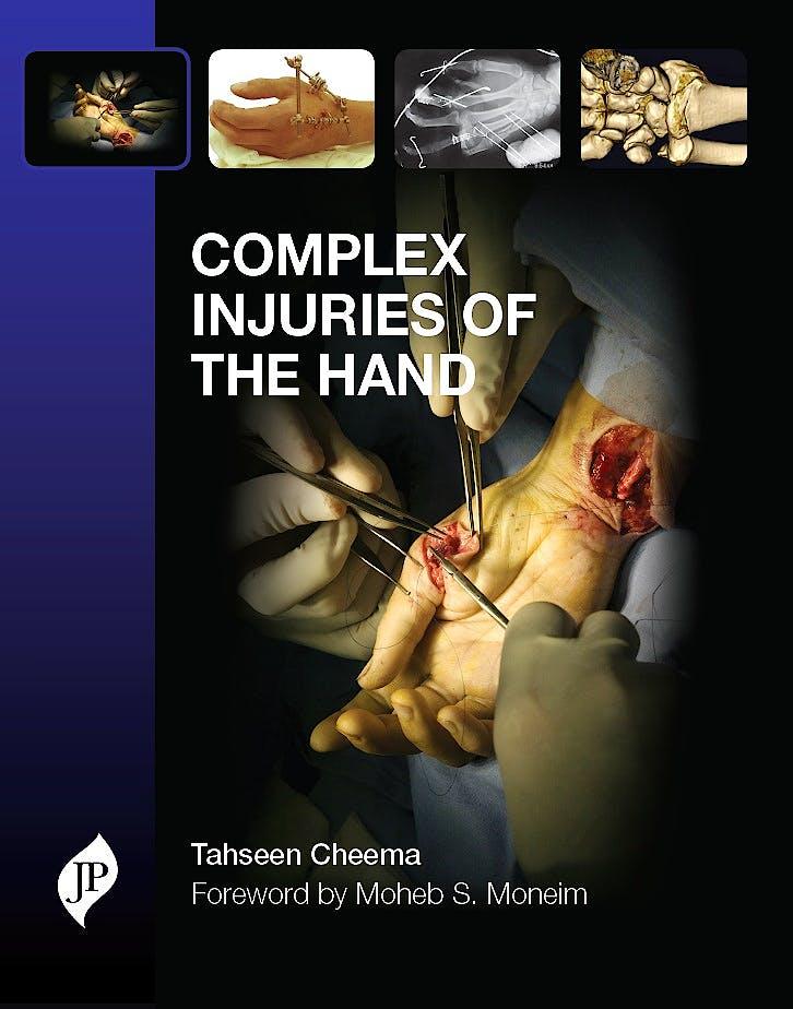 Portada del libro 9781907816253 Complex Injuries of the Hand