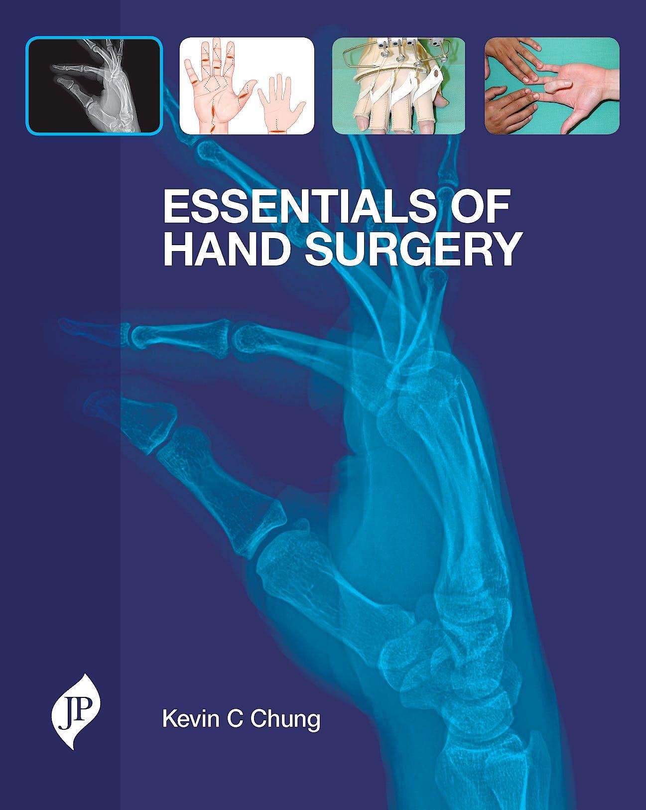 Portada del libro 9781907816321 Essentials of Hand Surgery