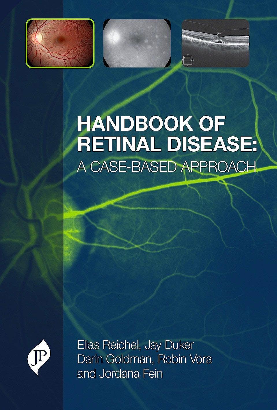 Portada del libro 9781907816925 Handbook of Retinal Disease. a Case-Based Approach