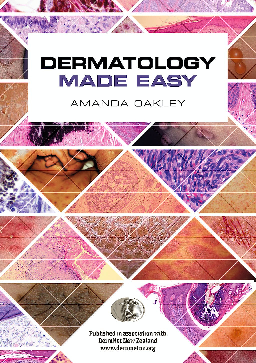 Portada del libro 9781907904820 Dermatology Made Easy