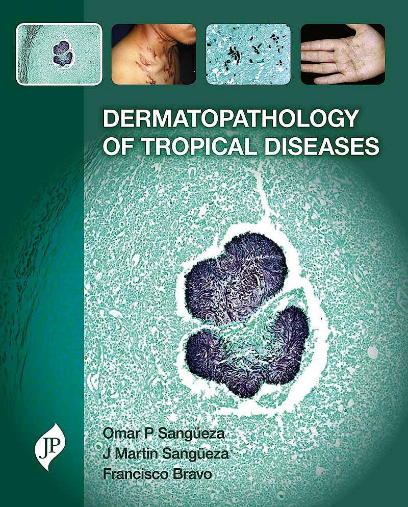 Portada del libro 9781909836068 Dermatopathology of Tropical Diseases