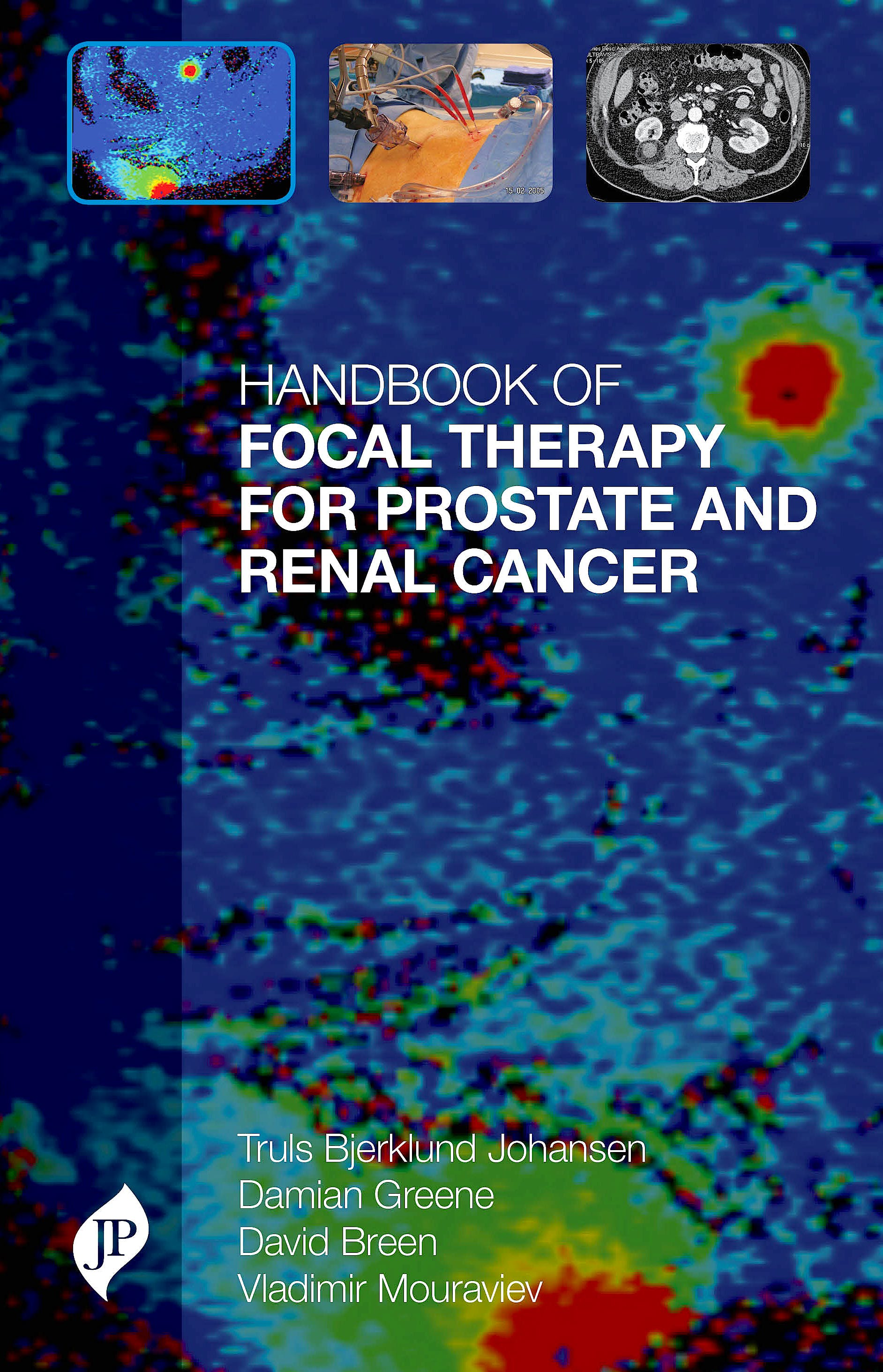 Portada del libro 9781909836112 Handbook of Focal Therapy for Prostate and Renal Cancer