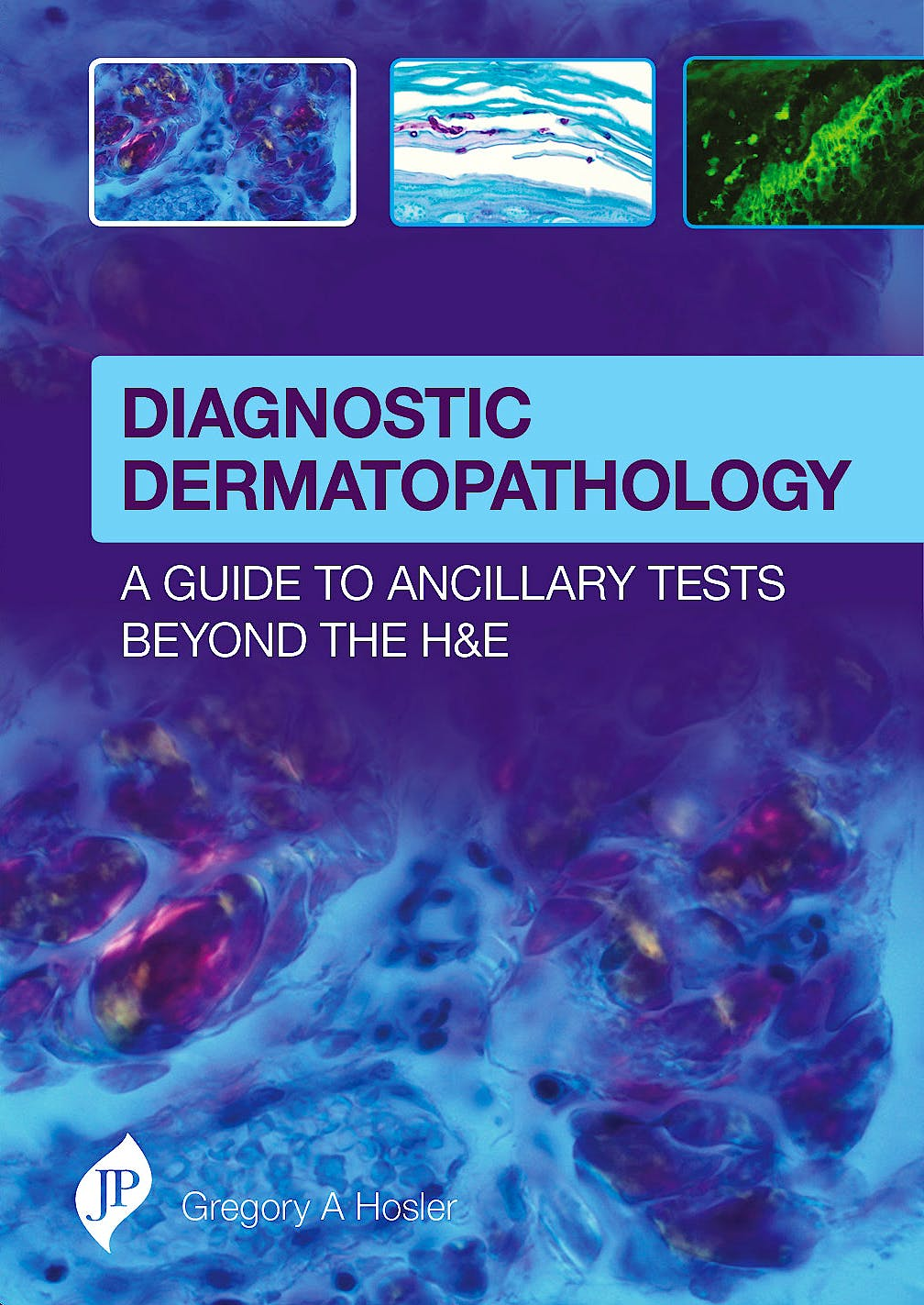 Portada del libro 9781909836129 Diagnostic Dermatopathology. A Guide to Ancillary Tests beyond the H&E