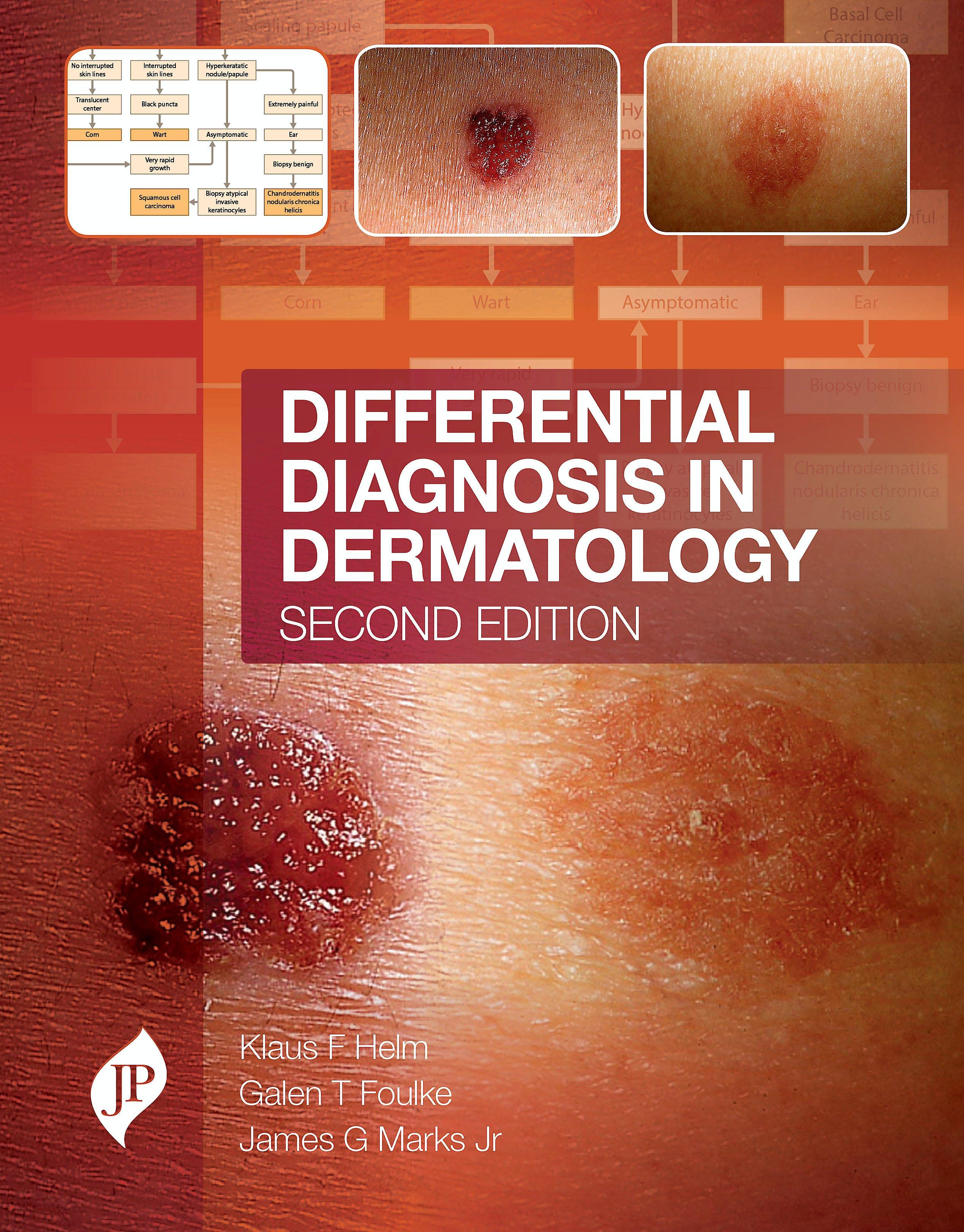 Portada del libro 9781909836198 Differential Diagnosis in Dermatology