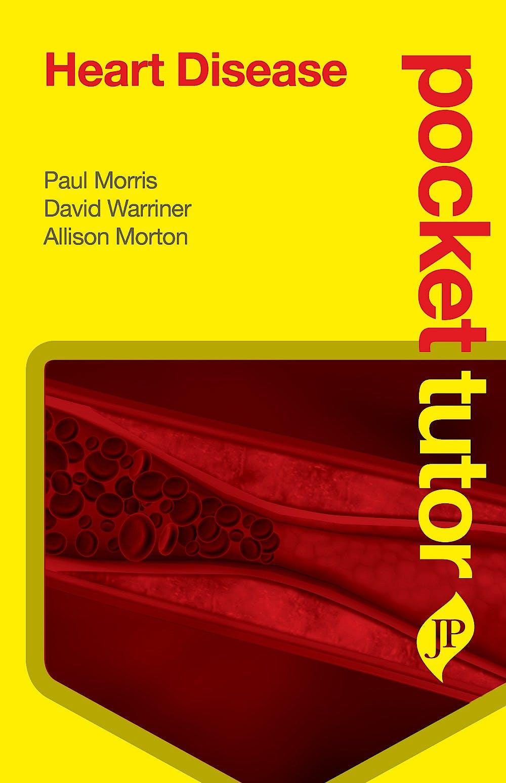 Portada del libro 9781909836327 Pocket Tutor Heart Disease