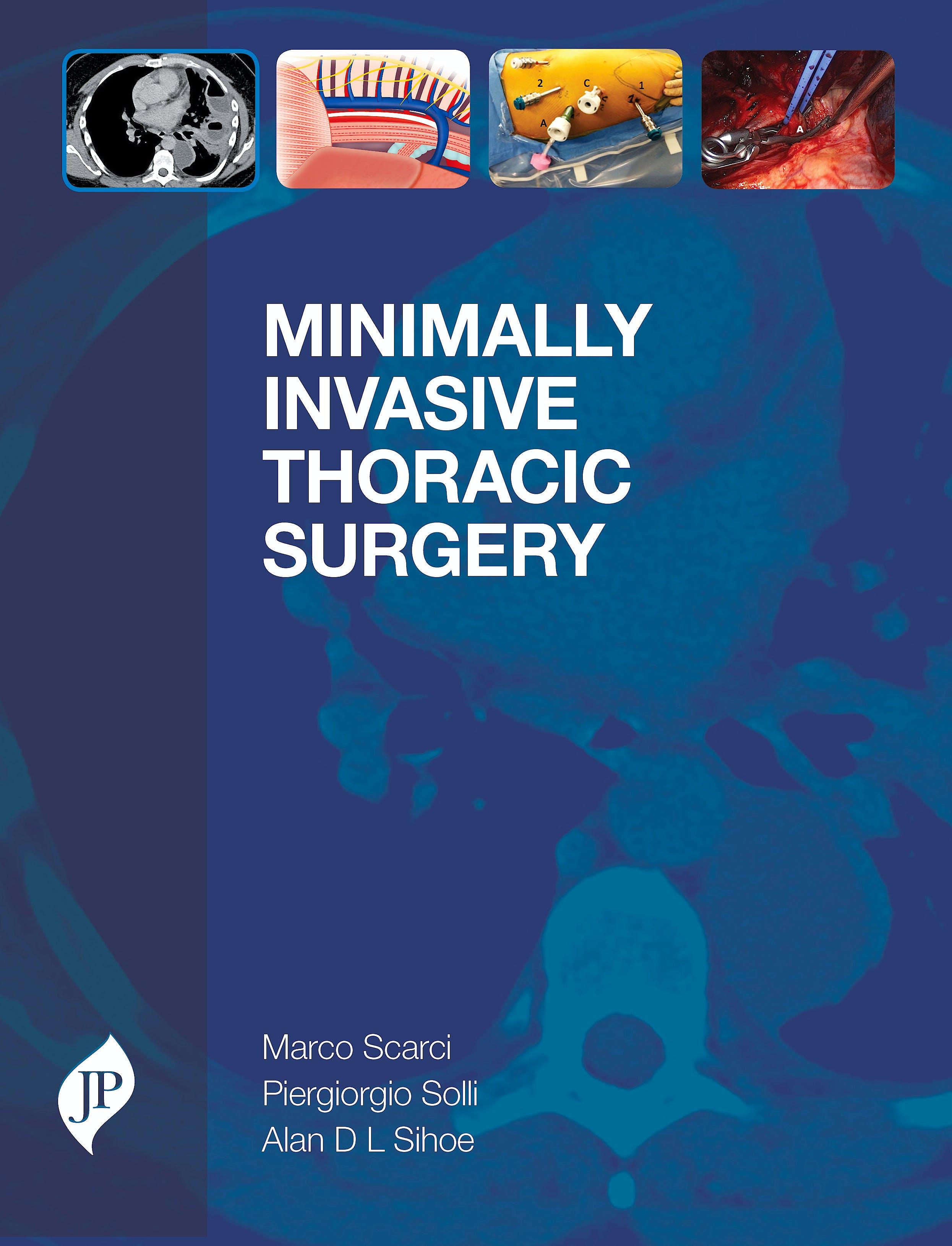 Portada del libro 9781909836402 Minimally Invasive Thoracic Surgery