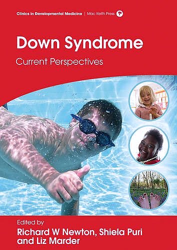 Portada del libro 9781909962477 Down Syndrome. Current Perspectives