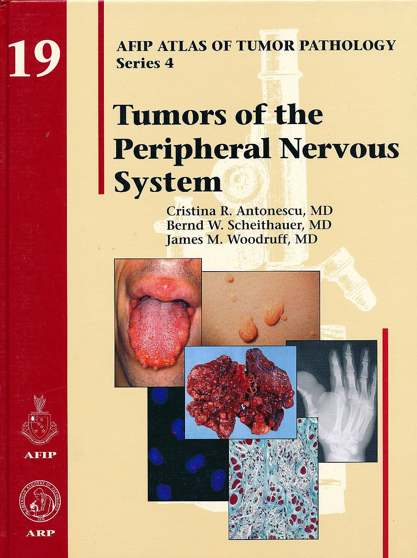 Portada del libro 9781933477305 Tumors of the Peripheral Nervous System (AFIP Atlas of Tumor Pathology Series 4, Vol. 19)