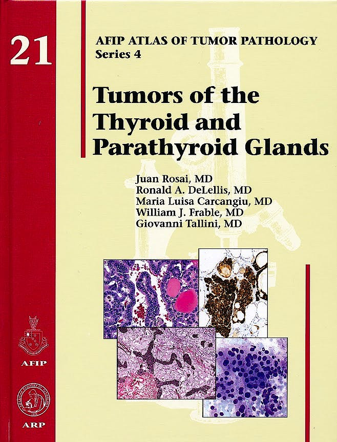 Portada del libro 9781933477329 Tumors of the Thyroid and Parathyroid Glands (AFIP Atlas of Tumor Pathology Series 4, Vol. 21)