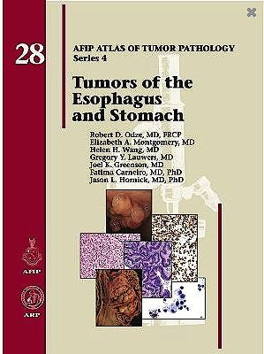 Portada del libro 9781933477404 Tumors of the Esophagus and Stomach (AFIP Atlas of Tumor Pathology Series 4, Vol. 28)