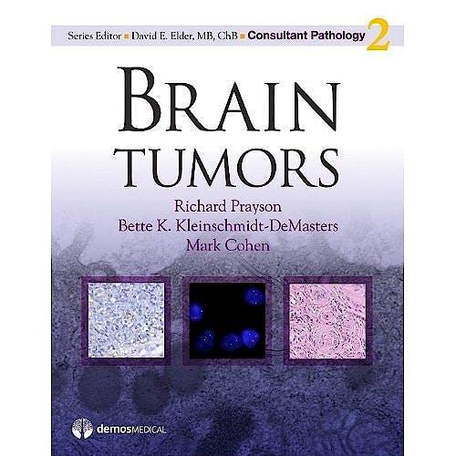 Portada del libro 9781933864693 Brain Tumors (Consultant Pathology, Vol. 2)