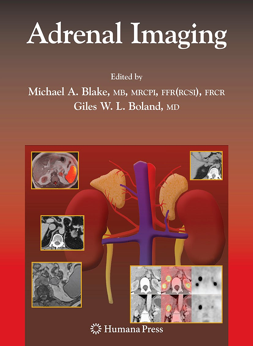 Portada del libro 9781934115862 Adrenal Imaging