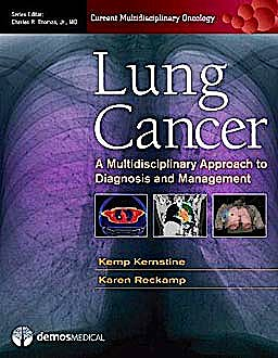 Portada del libro 9781936287062 Lung Cancer. a Multidisciplinary Approach to Diagnosis and Management