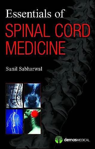 Portada del libro 9781936287383 Essentials of Spinal Cord Medicine