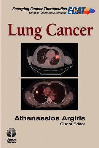 Portada del libro 9781936287529 Lung Cancer. Emerging Cancer Therapeutics