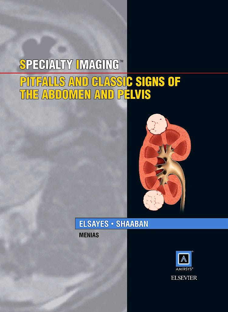 Portada del libro 9781937242183 Specialty Imaging. Pitfalls and Classic Signs of the Abdomen and Pelvis